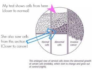 Cervical Cancer Stages Explained