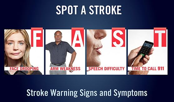 How to spot a stroke using FAST