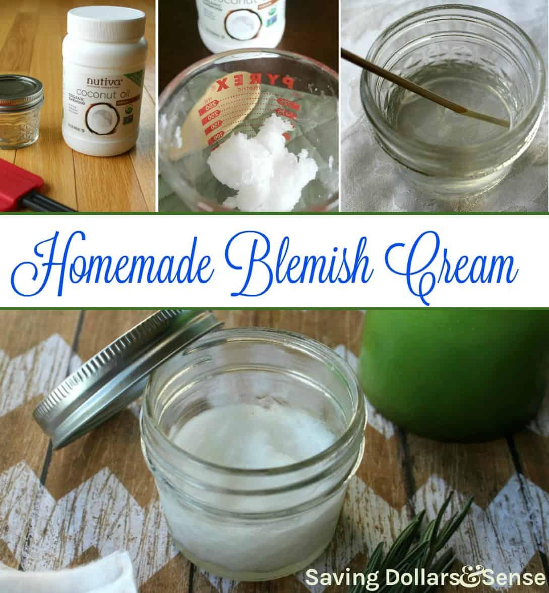 Homemade Blemish Cream